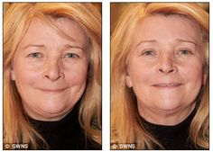 Look at this change after using eye secrets colagen