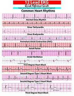 12 Lead EKG Pocket Card by APRN World http://www.amazon.com/dp/1941004067/ref=cm_sw_r_pi_dp_WVxrvb0GQT8XZ