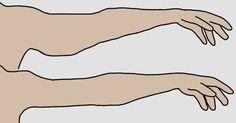 Az idő múlásával bőrünk veszít rugalmasságából, és ehhez hozzájárul a mozgásszegény életmód is. Főként a nőket érinti kellemetlenül a lógó kar jelenség, amikor a bőr…