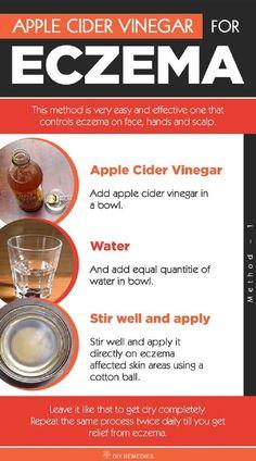 Apple Cider Vinegar Eczema Remedy - 15 Best Natural Eczema Remedies, Treatments, Tips and Tricks #RemediesEczema