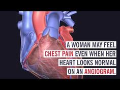 Men and women's hearts may look similar but they are definitely different. Find out why women are more at risk for certain heart-related problems and how to spot more subtle symptoms of a heart attack. Cleveland Clinic, Heart Attack, Definitions, Science And Technology, Hearts, Feelings, Women, Woman