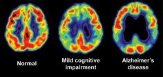 Mild Cognitive Impairment- Causes, Symptoms, Diagnosis, Treatment and Ongoing care