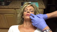 Juvederm Volbella XC (conservative lip injection in thin lips)