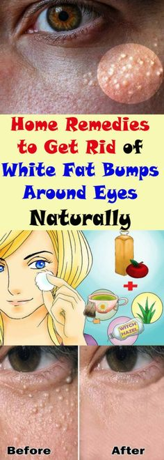 Home Remedies to Get Rid of White Fat Bumps Around Eyes Naturally #health #beauty #fitness #eye