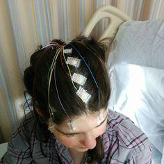 I'm Exhausted - But It Was Worth It #Epilepsy #EMU #EpilepsyMonitoringUnit Purple Day, Makeup Mistakes, Brain Tumor, Epilepsy, Exhausted, The Unit, Emu, Hair Styles, Posts