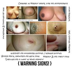 warning signs of breast cancer Exercise Equipment For Sale, No Equipment Workout, Cancer Sign, One Drop, Neck Pain, Warning Signs, Healthy Tips, Breast Cancer, Facts