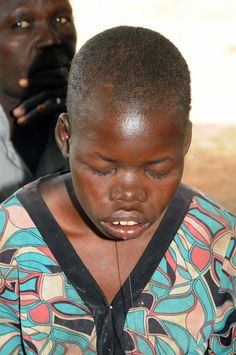 Solving Uganda's nodding syndrome