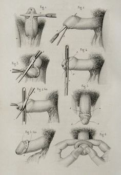 1857 Antique bizarre print of HUMAN ANATOMY. UROLOGY. Human Pennis. Surgery. Male anatomy. 158 years old lithograph.