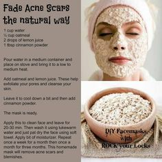 Fade acne scares the natural way! (pinterest is awesome!!!!)