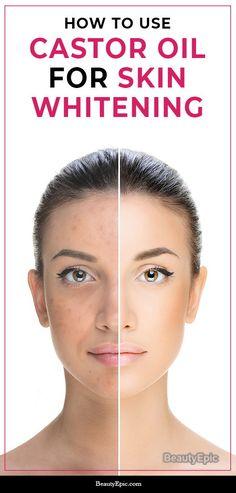 How to Use Castor Oil for Skin Whitening?