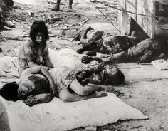 Victims of Hiroshima i rahter shoot them or inject them with a chemical to kill them then let them suffer that way! stupid asses beyond belief! Hiroshima Bombing, Atomic Bomb Explosion, Atomic Bomb Hiroshima, First Atomic Bomb, Haunting Photos, Ww2 Pictures, Enola Gay