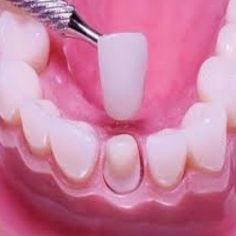 Dental Restorations And How They Can Help Your Teeth www.y2kdentistry.net