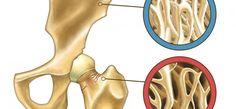 L'ostéoporose : comment la prévenir naturellement