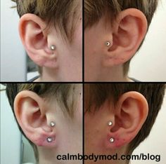 Lobe reconstruction and re-piercing by Chai at CALM Body Modification in Stockholm, Sweden. Instagram: @ chaiatcalm