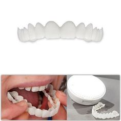 Smart Smile 1pc upper