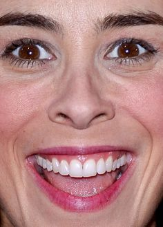 Celebrity photos that are really close-up. Celebrities with bad skin,. Perfect Teeth, Will Ferrell, Hair Transplant, Celebs, Celebrities, Funny Faces, Celebrity Photos, Kardashian, Close Up
