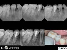 #Repost #follow @virajendo with @repostapp  Regenerative therapy. 3 year recall. Asymptomatic and functional. #endodontics #endodontist #toronto #stemcell #regeneration #dentistry #southeast #asia #dental #report #seadr by southeastasiadentalreport Our General Dentistry Page: http://www.myimagedental.com/services/general-dentistry/ Google My Business: https://plus.google.com/ImageDentalStockton/about Our Yelp Page: http://www.yelp.com/biz/image-dental-stockton-3 Our Facebook Page…