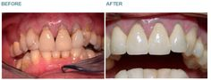 Dental Crowns - Case 3 This lady was concerned by the appearance of the old crowns on her front four teeth. Previous dentists had placed filling material along the gum line where the crowns did not fit and one of the crowns was cracked. She chose to have the crowns replaced as well as having all her back teeth amalgam fillings replaced BEFORE: Note the different appearance of the colour at the gumline where filling material has been bonded. Also note the crack on the right side lateral…