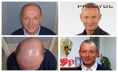 Hair transplant with FUE method at a high level is represented by multiple images	http://phaeyde.com/hair-transplantation