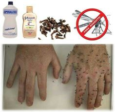 Mosquito repellent - Ingredients  1 2 litre of alcohol 100 gram of whole  cloves 1cdf8bff1a33b