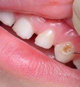 Denta Seal Teeth Care, Pedi, Health And Beauty, Hollywood, Cilantro, Store, Teeth Cleaning, Dental Health, Tooth Enamel