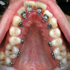 Three Types Of Invisible Braces And Their Benefits Dental Hygiene, Dental Health, Dental Life, Medical Dental, Lingual Braces, Types Of Braces, Invisible Braces
