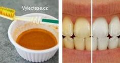 Teeth whitening aware of Coconut oil and Turmeric / Organic Get better at Little or Best Teeth Whitening Kit, Teeth Whitening Remedies, Natural Teeth Whitening, Charcoal Teeth, Coconut Oil Pulling, Beauty Tips For Skin, Natural Beauty, Teeth Cleaning, Diy Skin Care