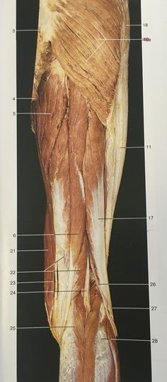 Superficial layer and dorsal aspect muscles of right thigh: maximus, fasciae latae, magnus, femoris, Tensor Fasciae Latae, Muscular System, Medical Anatomy, Muscle Anatomy, Muscle Body, Anatomy And Physiology, Anatomy Reference, Human Anatomy, Massage Therapy