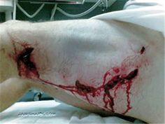 What Sharks Bite | Lee Mellin bite wound from Great White Shark attack