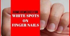 Home Remedies For White Spots On Finger Nails - Remedies Lore White Spots On Nails, Treating Toenail Fungus, Painful Bladder Syndrome, Nail Psoriasis, Nail Oil, Interstitial Cystitis, Nail Growth, Fungal Infection
