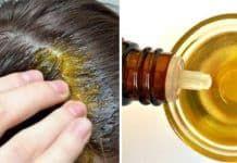 Ten domowy szampon sprawi, że Twoje włosy będą rosły jak szalone. Tania i skuteczna kuracja