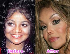celebrity plastic surgery before and after - LaToya