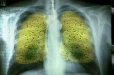 Βόμβα Υγείας: Αυτό Είναι Το Απίθανο Ρόφημα Που Εξαφανίζει Πίσσα Και Νικοτίνη Από Τους Πνεύμονες! Ποιό το απίθανο ρόφημα που θα εξαφανίσει την πίσσα και