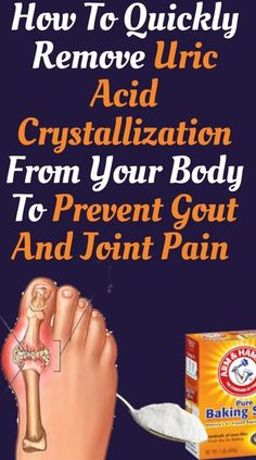 How To Quickly Remove Uric Acid Crystallization From Your Body To Prevent Gout And Joint Pain Health And Beauty Tips, Health Tips, Health And Wellness, Wellness Tips, Health Care, Health Facts, Health Benefits, Health Fitness, How To Cure Gout
