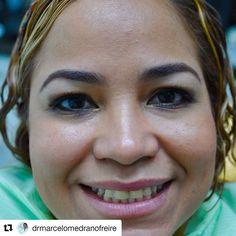 #Repost @drmarcelomedranofreire with @repostapp ・・・ Decídete a cambiar tu vida con solo cambiar tu sonrisa con tan solo un blanqueamiento y 4 carillas de porcelana E-max tendrás la sonrisa de tus sueños Llámanos al 2-836826 o escríbenos por más información al 0990755754  #belleza #estetica #salud #follow #bestoftheday #F4F #Follow #Followme #L4L #Like4Like #belleza #salud  #carillas  #samborondon #guayaquil #venners #mouth #sonrisa #boca  #cuenca #machala  #loja #ambato #salinas #playas…