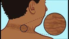 caricatura de síntomas de prostatitis