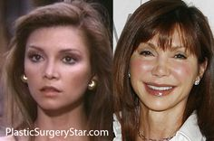 Victoria Principal had a very youthful face when she was in her Although her facelift / plastic surgery was pretty extreme, she now looks super young for her age and not disfigured. Bad Celebrity Plastic Surgery, Botched Plastic Surgery, Bad Plastic Surgeries, Plastic Surgery Before After, Plastic Surgery Gone Wrong, Victoria Principal, Celebrities Before And After, Celebrities Then And Now, Marie Osmond