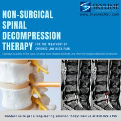Chiropractor in Van Nuys Decompression Therapy, Spinal Decompression, Chronic Lower Back Pain, Chronic Pain, Chiropractic Center, Car Accident Injuries, Back Injury, Van Nuys, Massage Therapy
