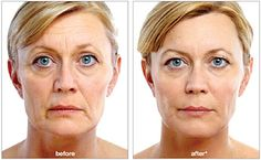 NEW Juvederm Voluma - amazing before and after!