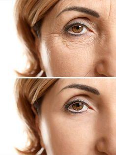 Anti-Wrinkle Silicone Eye Pad - Anti Aging Collagen Patch, Smooth Skin Wrinkles, Botox Filler Alternative, Self Care Mascara Hacks, Wrinkle Remedies, Anti Wrinkle, Healthy Skin, Anti Aging, Beauty Hacks, Beauty Stuff, Beauty Tips, Skin Care