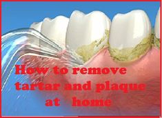 How to remove plaque and tartar at home ?plaque,tartar,home remedies for tartar This post looks at the different ways to remove plaque and tartar from your teeth without visiting the dentist . You can use orange skin , sesame seed can be chewed , plax is a mouth wash said to also remove plaque . Periogen is another mouth wash proven to remove tartar