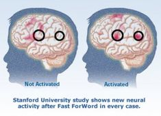 Brain Activity After Auditory Processing Disorder Treatment