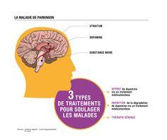"""""""Quels sont les progrès dans le traitement de la maladie de Parkinson ?"""" 100 questions/100 réponses"""