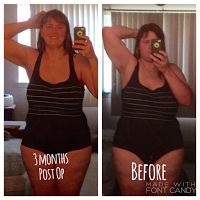 344 Best Weight Loss Surgery Images