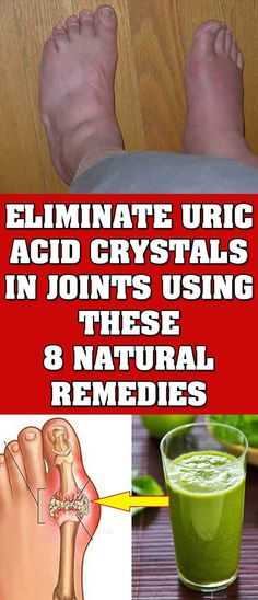 Just Eliminate Uric Acid Crystal In Your Joints With These Eight Natural RemediesToday we will present you the best natural remedies that will help you eliminate uric acid crystals in your joints.Due to the accumulation of crystals and uric acid in the jo Wellness Tips, Health And Wellness, Health Care, Natural Health Tips, Natural Health Remedies, Natural Healing, Natural Cures, Types Of Arthritis, Health Tips