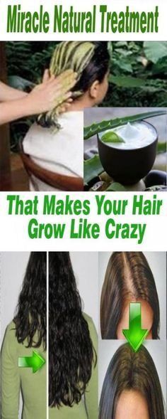 Miracle Natural Treatment That Makes Your Hair Grow Like Crazy: