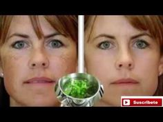 Lava tu cara con esto antes de dormir y olvídate de Arrugas y manchas - YouTube Brown Patches On Face, Clean Face, Acne Scars, El Acne, Facial Brown Spots, Black Spots On Face, Dark Spots On Skin, Dark Skin, Liver Spot