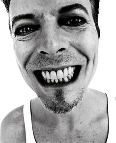 He's looked better.  But I still love him.  David Bowie