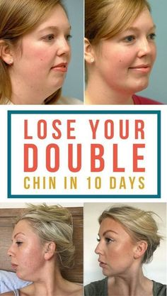 Home remedies and facial exercise to get rid of double chin wrap overnight. - Do it Smart Natural Skin, Natural Health, Double Chin Reduction, Reduce Double Chin, Double Chin Exercises, Cold Home Remedies, Facial Exercises, Neck Exercises, Sciatica Exercises