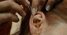2 капли этого в уши и 97% вашего слуха будет восстановлено! Это помогает даже пожилым людям! Вы заметите невероятные результаты в ближайшее время!. Обсуждение на LiveInternet - Российский Сервис Онлайн-Дневников